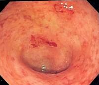 Imagen endoscópica de colon sigmoide afecto de colitis ulcerosa. Tomada de la Wikipedia.